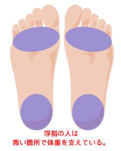 足の裏 浮指